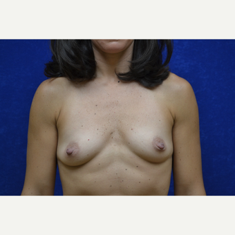 35-44 year old woman treated with Breast Augmentation before 3664009