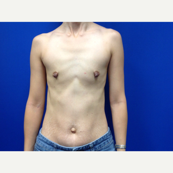 25-34 year old woman treated with Breast Augmentation before 3019041