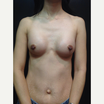 25-34 year old woman treated with Breast Augmentation after 3019041