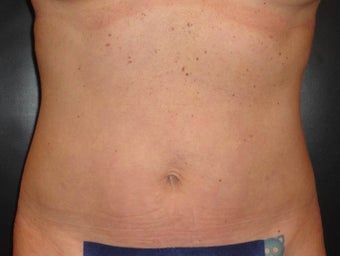 SmartLipo MPX after 987068
