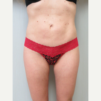 35-44 year old woman treated with Liposuction after 3299773