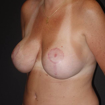 45-54 year old woman treated with Breast Lift with Implants after 3495810