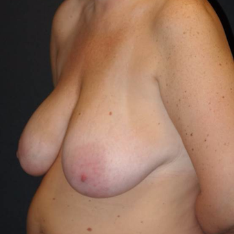 45-54 year old woman treated with Breast Lift with Implants before 3495810