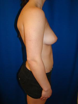Breast Augmentation, Breast Enhancement, Silicone gel Implants 1367902