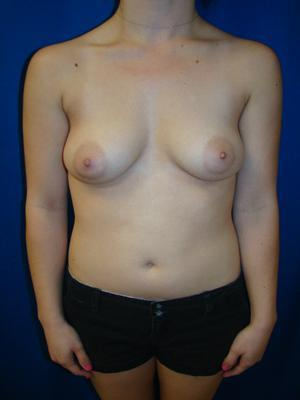 Breast Augmentation, Breast Enhancement, Silicone gel Implants before 1367902