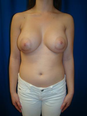 Breast Augmentation, Breast Enhancement, Silicone gel Implants after 1367902