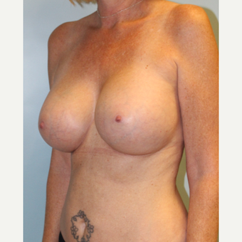 45-54 year old woman treated with Breast Augmentation after 3709861