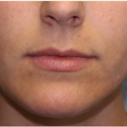 23 year old woman treated with Lip Augmentation before 3460139