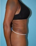 Tummy Tuck with Liposuction 1073952