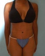 Tummy Tuck with Liposuction after 1073952