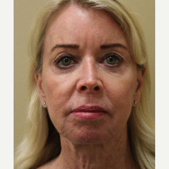 65-74 year old woman treated with secondary Facelift before 3629721