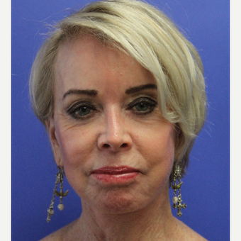 65-74 year old woman treated with secondary Facelift after 3629721