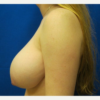 19 year old woman treated with Breast Reduction 1712189