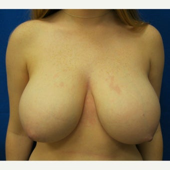 19 year old woman treated with Breast Reduction