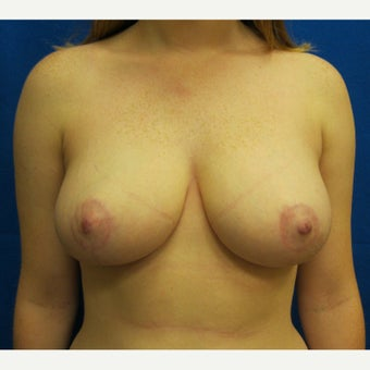 19 year old woman treated with Breast Reduction after 1712189