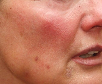 Fraxel Repair for Sun Damage and Wrinkles 110208