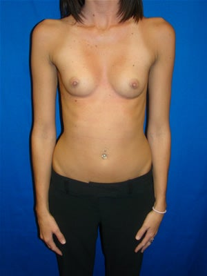 Breast Augmentation Surgery before 130970