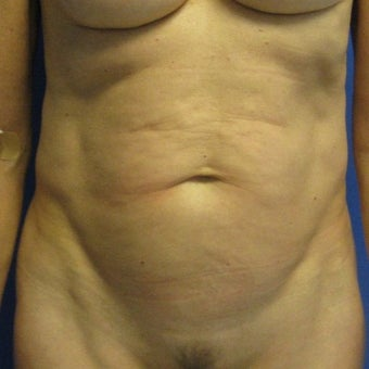 55-64 year old woman treated with Tummy Tuck before 1978083