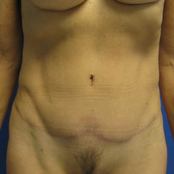 55-64 year old woman treated with Tummy Tuck after 1978083