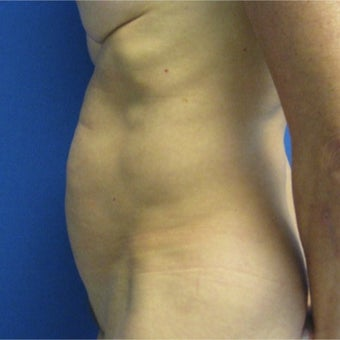 55-64 year old woman treated with Tummy Tuck 1978083