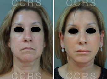 55 year old woman treated with SMAS Facelift before 3031530