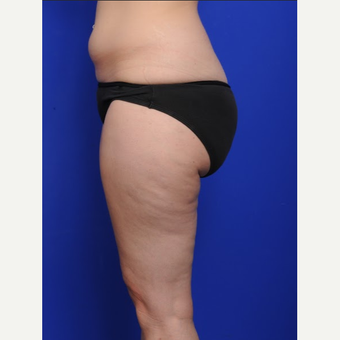 25-34 year old woman treated with Liposuction before 3200495