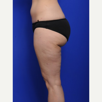 25-34 year old woman treated with Liposuction after 3200495