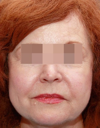 Sculptra for Volume Loss after 219229