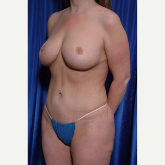 35-44 year old woman treated with Breast Implant Removal after 2272927