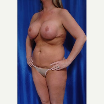 35-44 year old woman treated with Breast Implant Removal before 2272927