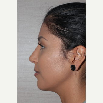 25-34 year old woman treated with Rhinoplasty after 3081302