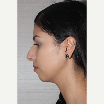 25-34 year old woman treated with Rhinoplasty before 3081302