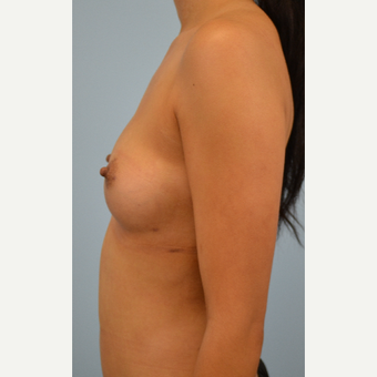 34 year old woman treated with Breast Fat Transfer after 3432120