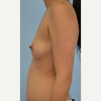 34 year old woman treated with Breast Fat Transfer before 3432120