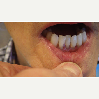 45-54 year old man treated with Porcelain Veneers before 3691196