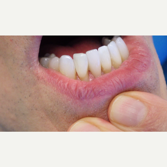 45-54 year old man treated with Porcelain Veneers after 3691196