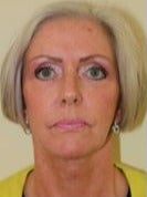 45-54 year old woman treated with Facelift after 3075419