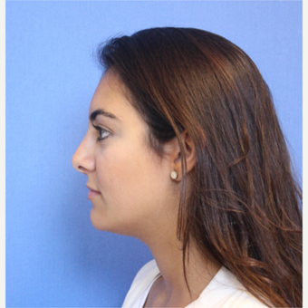 18-24 year old woman treated with Rhinoplasty after 3377785