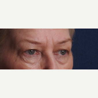 55-64 year old woman treated with Upper and Lower Eyelid Surgery before 3852363