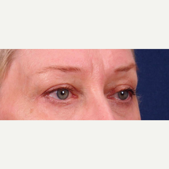 55-64 year old woman treated with Upper and Lower Eyelid Surgery after 3852363