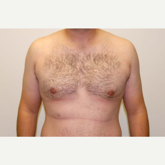 18-24 year old man treated with Male Breast Reduction after 3383186