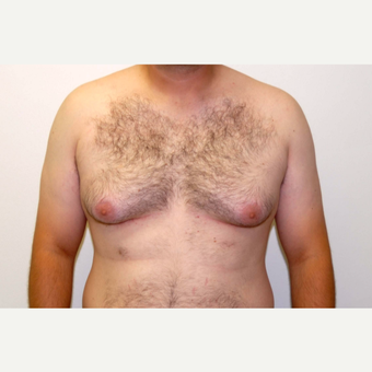 18-24 year old man treated with Male Breast Reduction before 3383186