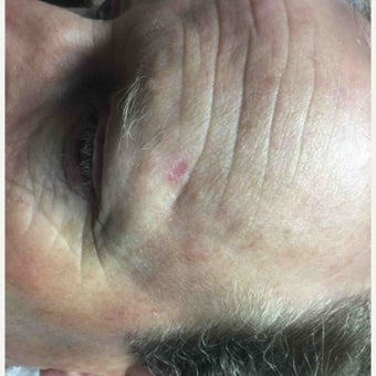 45-54 year old woman treated with Mohs Surgery after 2412606