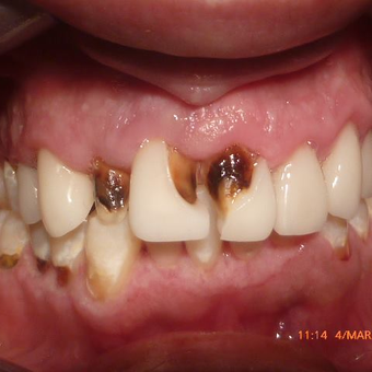 Smile Makeover - CERAC CROWNS - Instant digital dentistry before 3136498