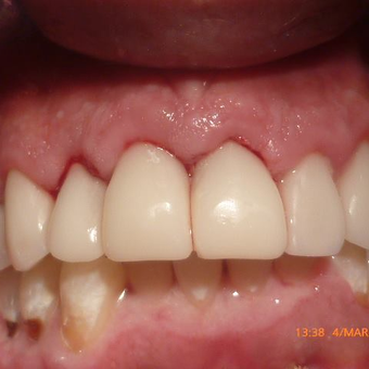 Smile Makeover - CERAC CROWNS - Instant digital dentistry after 3136498