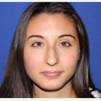18-24 YO Female Primary Rhinoplasty before 3129153