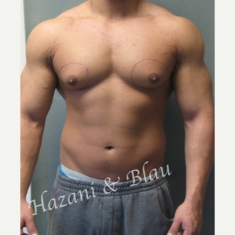 25-34 year old man treated with Male Breast Reduction before 3321332