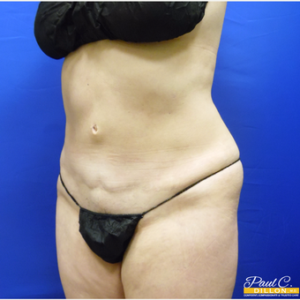 35-44 year old woman treated with Liposuction after 3611448