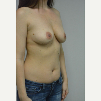 25-34 year old woman treated with Breast Implant Revision before 3481795