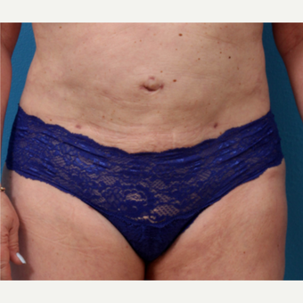 55-64 year old woman treated with Liposuction after 3340143
